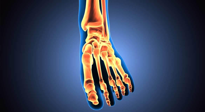 Arthrose et chiropraticien