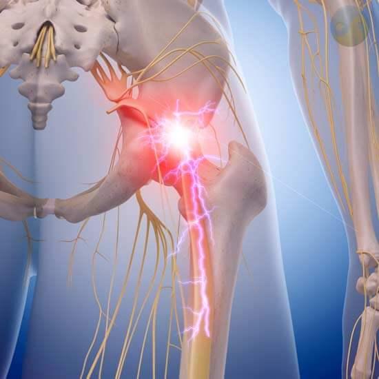 Douleur au nerf sciatique