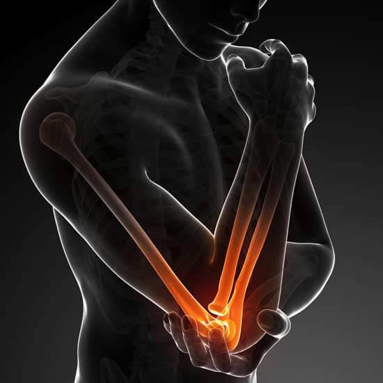 Soigner la douleur tennis elbow
